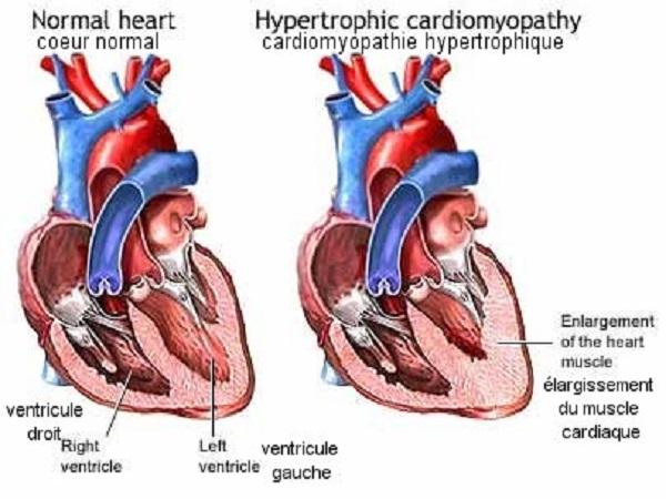 maladie cardiomyopathie hypertrophique féline